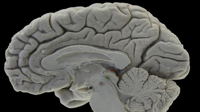 tlmd_cerebro_humano