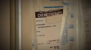 Métodos de detección para prevenir diferentes cánceres