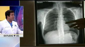 Detección temprana de cáncer de pulmón