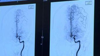 ¿Cómo identificar un derrame cerebral?