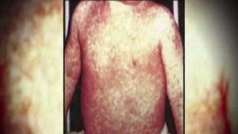 Texas en alerta por brote de sarampión
