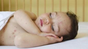 Niños y adultos contagiados con poderosa bacteria