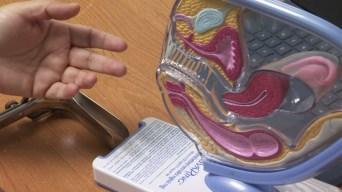 Examen gratuito para el virus del papiloma humano