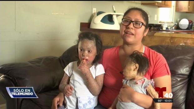 [TLMD - McAllen] Hermanas padecen de una condición incurable desde nacimiento