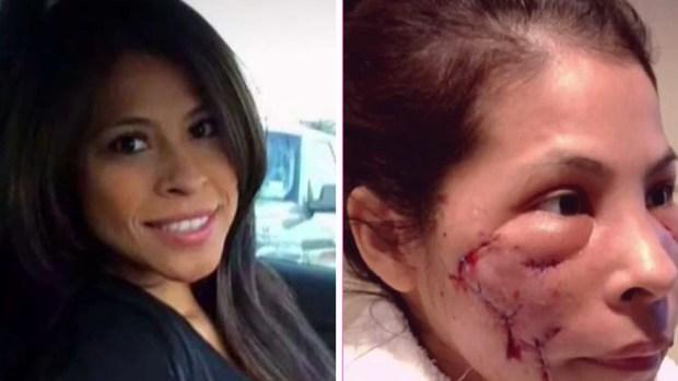 Inyecciones ilegales arruinaron su rostro