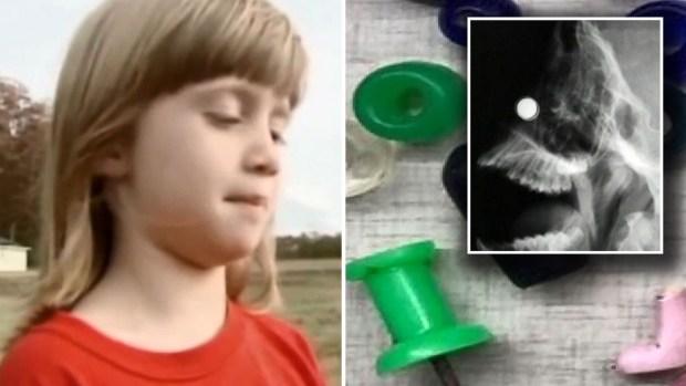 Alarmante: objetos hallados en los cuerpos de niños