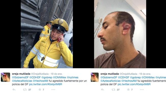 México: Oficial de tránsito mutila oreja a conductor