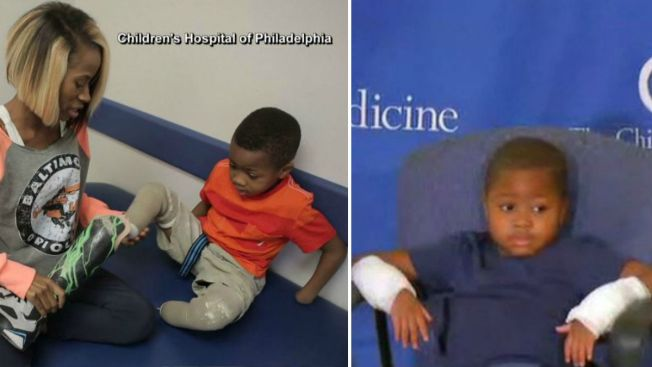 Es el más joven en recibir trasplante de manos