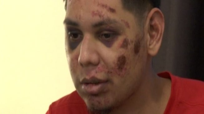 Brutal golpiza en Mission lo envía al hospital